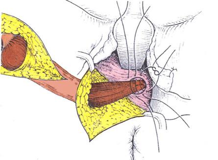 vagina muskel